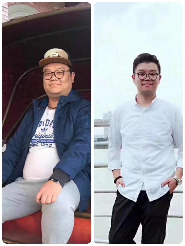 好口碑的奥利司他可以瘦身吗哪家值得信赖瘦腿瘦肚子