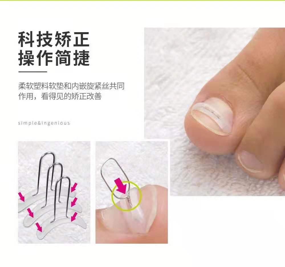 正规的趾甲矫正有什么推荐设备先进